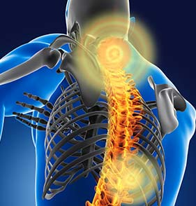 chiropractic care showing human spine with pain points